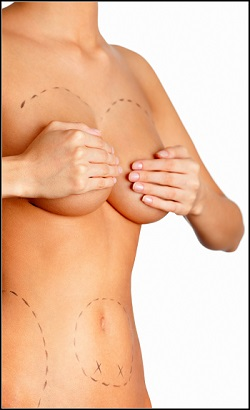 ניתוחים להגדלת חזה