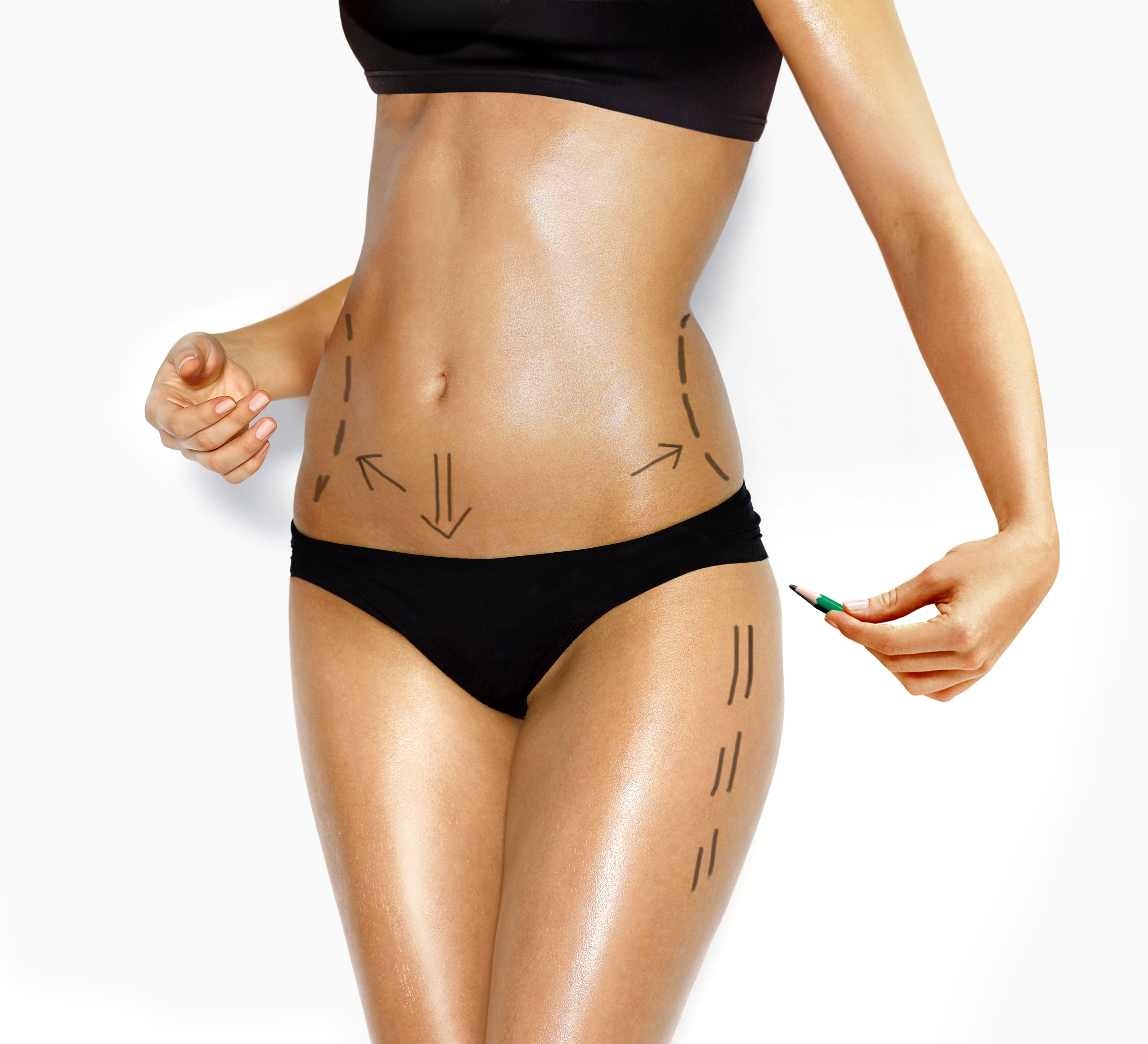 attractive Caucasian woman's abdomen and legs marked with lines for abdominal cellulite correction cosmetic surgery