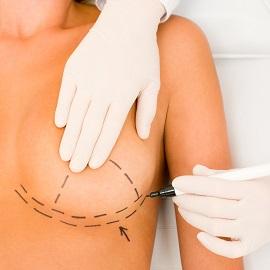 מידע על ניתוחים אסתטיים